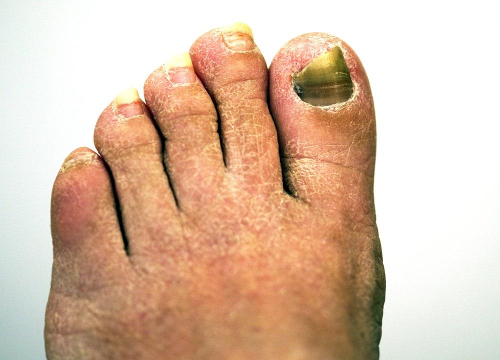 Fungi Nail Toe & Foot - Nails Gallery